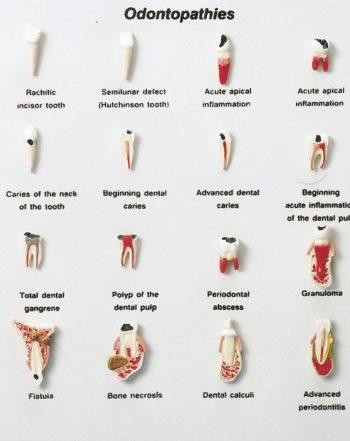 مدل (مولاژ) بیماریهای دندان