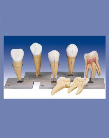مدل دندان سری ۵عددی